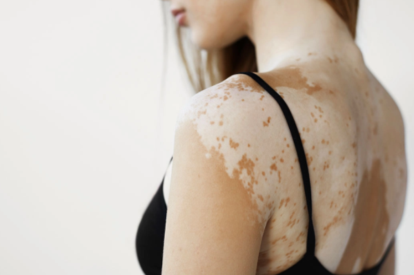 "Discolored skin, signs of ""vitiligo"""