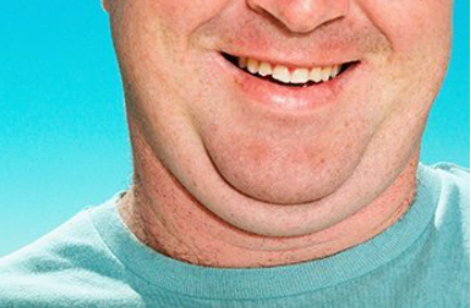 Reduce chin wattle I have fat under the chin